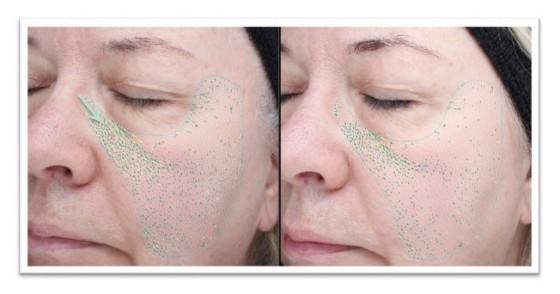 Poprawa struktury skóry